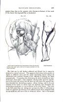 Página 415